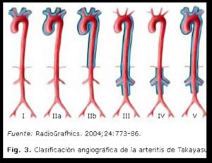 Arteritis de takayasu: reporte de caso clinico con intervencion de fisioterapia.
