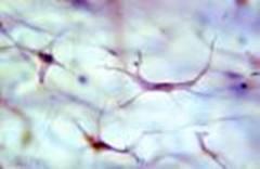 Aplicación de ultrasonoforesis empleando jalea real en cicatriz hipertrófica de miembros superiores como secuela de post quemadura tipo ABb-B