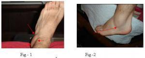 54 imágenes del esguince de tobillo