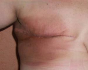 Importancia del tratamiento kinesiologico en la cirugía reconstructiva de mamas.