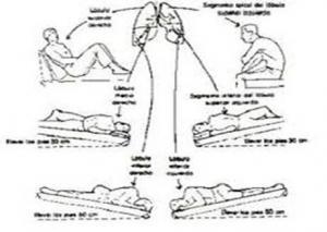 Kinesioterapia del torax