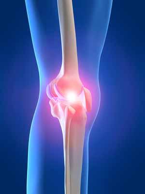 Puntos clave en la rehabilitación de rodilla