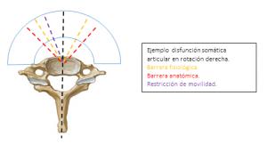 Lesión osteopática y disfunción somática.