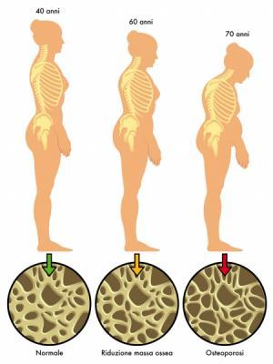 Recomendaciones para el paciente - osteoporosis