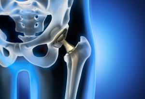 Abordajes de la hidroterapia en la rehabilitación de la prótesis de cadera