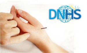 Punción Seca en Paciente Neurológico (Técnica DNHS)