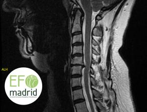 Radiología para Fisioterapeutas