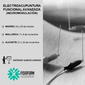 Electroacupuntura avanzada (Neuromodulación Funcional)