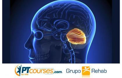Accidente Cerebrovascular Cerebeloso ¿Qué lo hace diferente?