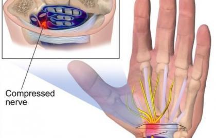 Fisioterapia en el Síndrome del túnel carpiano: Tratamiento conservador y postquirúrgico