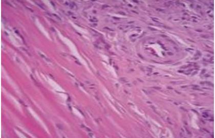 La Tendinopatía Rotuliana en el Síndrome Fémoro-Tibio-Patelar en jugadores profesionales de Voleibol. Tratamiento de Terapia Manual Neuro Ortopédica ( TMNO ) y Sobrecarga Excéntrica