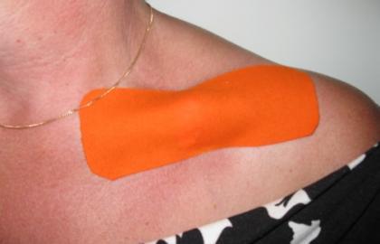 Uso de vendaje elástico terapéutico para aliviar el dolor en fracturas cerradas de clavícula y costillas. Efectos del Cure Tape en un caso pediátrico y dos adultos.