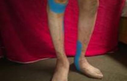 Mejora de la movilidad y correcion articular en artritis aplicando taping neuromuscular