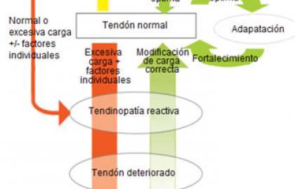 Ejercicios excéntricos en tendinopatía aquilea