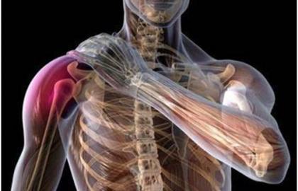 Caso clínico tratamiento basado en pilates