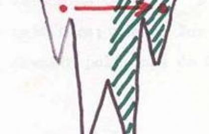 Tecnicas fisioterápicas en la hemiplejía