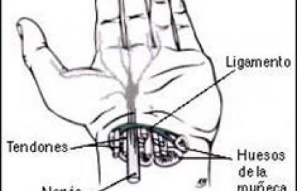 Síndrome del túnel carpiano, diagnóstico y tratamiento pre y post quirúrjico