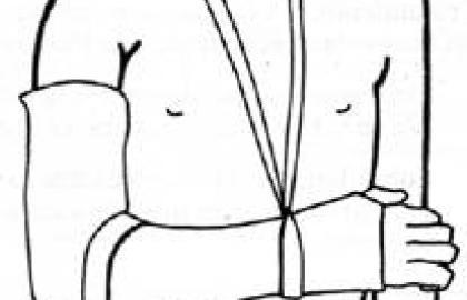 Fracturas de la diafisis del humero