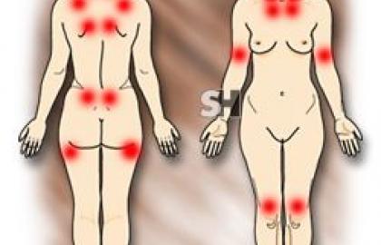Puntos dolorosos a la presión en fibromialgia
