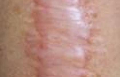 La fisioterapia y las cicatrices hipertróficas: el poder de las fuerzas mecánicas