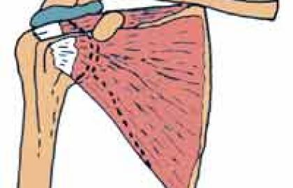 Síndrome subacromial