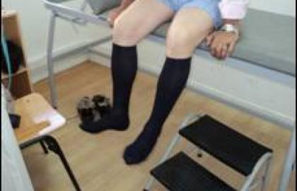trastornos venosos en las piernas