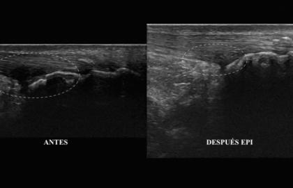 Tratamiento con la técnica EPI® de la Bursitis retrocalcanea
