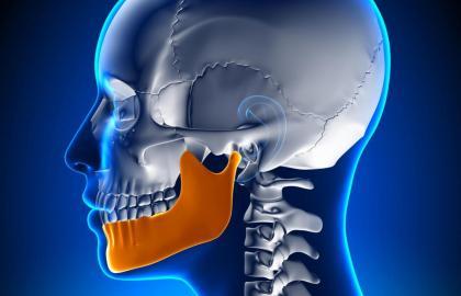 Enfoque global en el tratamiento de las Disfunciones Temporomandibulares