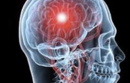 TRATAMIENTO URGENTE DE FISIOTERAPIA EN EL ACCIDENTE CEREBROVASCULAR