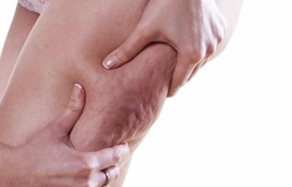 Recomendaciones para el paciente - celulitis