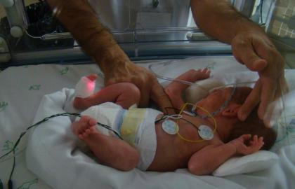¿Cuál es el papel del fisioterapeuta en un servicio de neonatología?