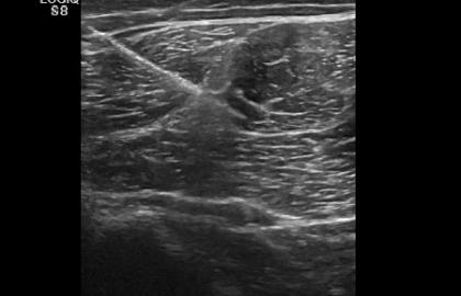 Técnica EPI® en el tratamiento de atrapamiento del nervio ciático por cicatriz fibrótica del Bíceps Femoral