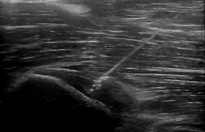 Vídeos de Tratamiento con la técnica EPI®