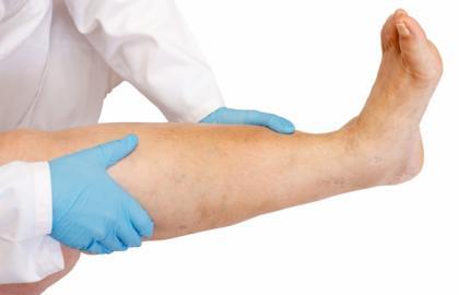Recomendaciones para el paciente - flebitis