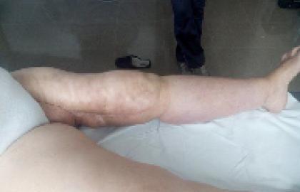 Linfedema de MMII y Kinesiotape.A raíz de un caso clínico con complicaciones.