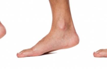 Tratamiento kinésico – físico de pie plano