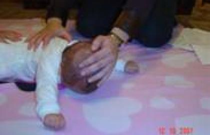 Fisioterapia en torticolis congenita