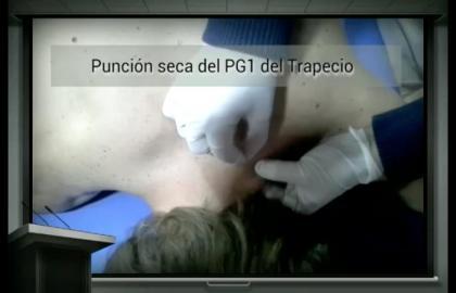 Fisioterapia invasiva: Puntos gatillo y punción seca en el dolor musculoesquelético