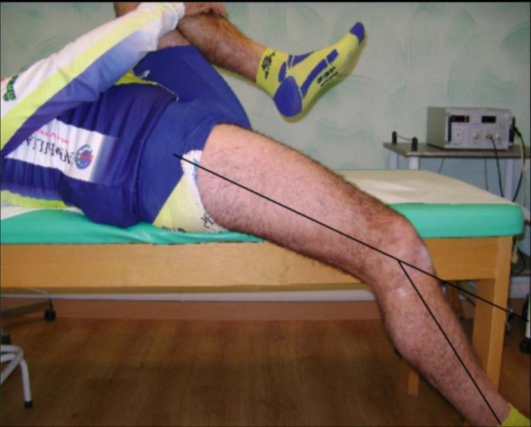 flexión limitada del cuádriceps derecho