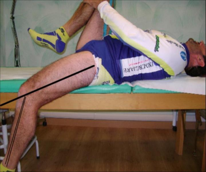 Flexión limitada del cuádriceps izquierdo