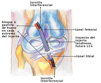 ESTUDIO DEL CENTRO DE GRAVEDAD - fisioterapia2013-17